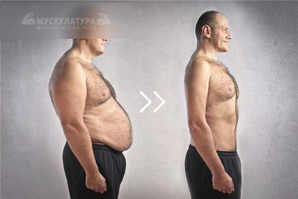 как убрать подкожный жир живота женщине